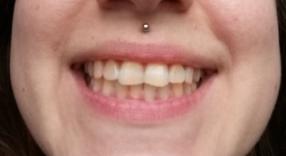 Bělení zubů - před