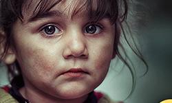 Nebezpečí: Nedopalek vs. dítě