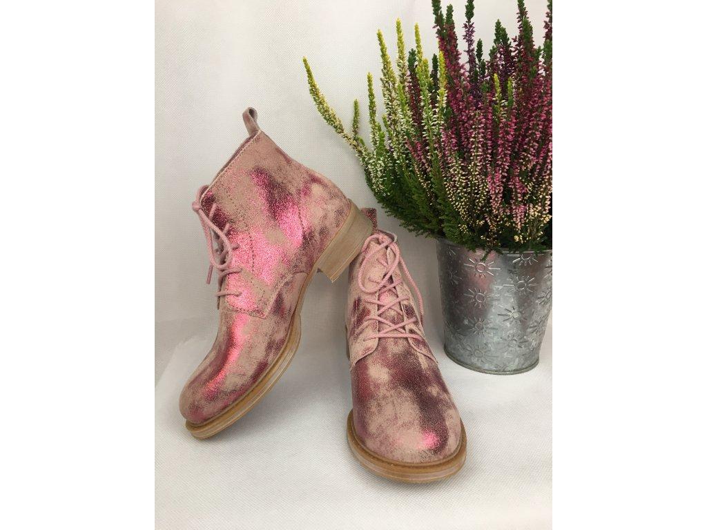 Ten Points kotníčkové boty růžové metalické