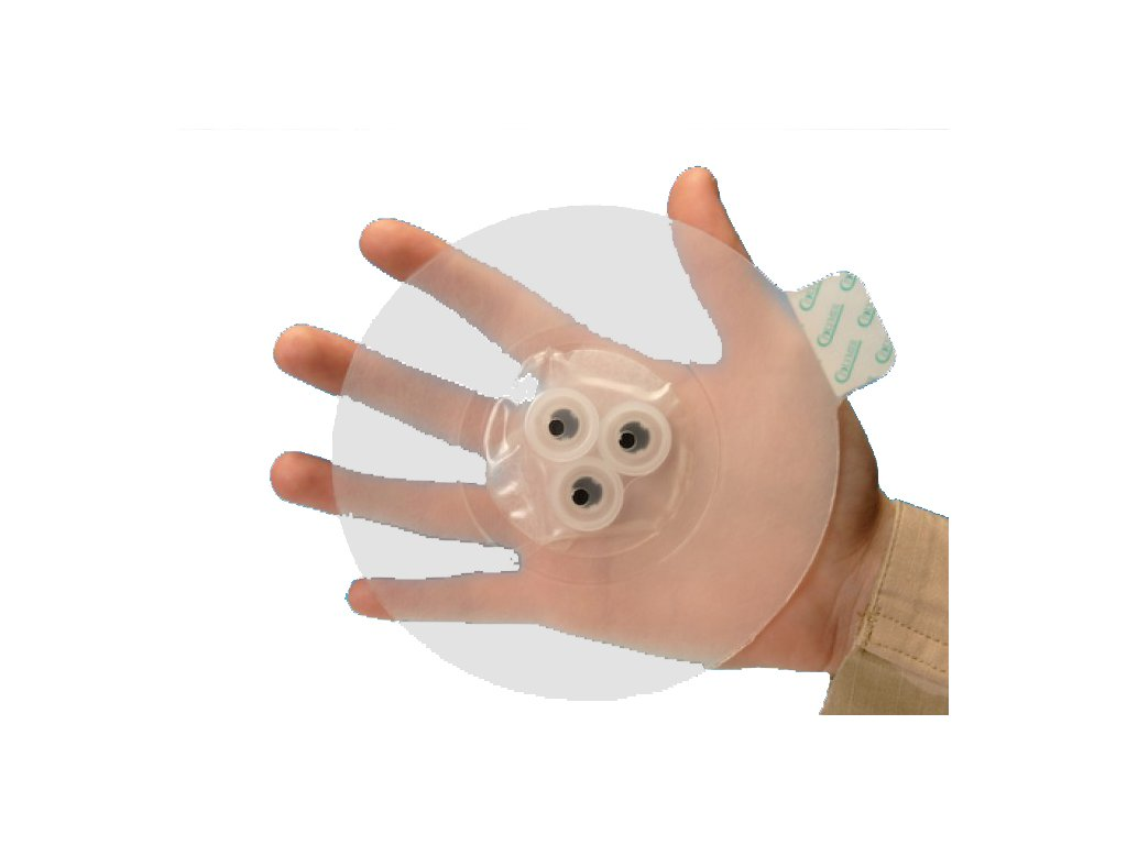 Bolin chest seal - hrudní chlopeň