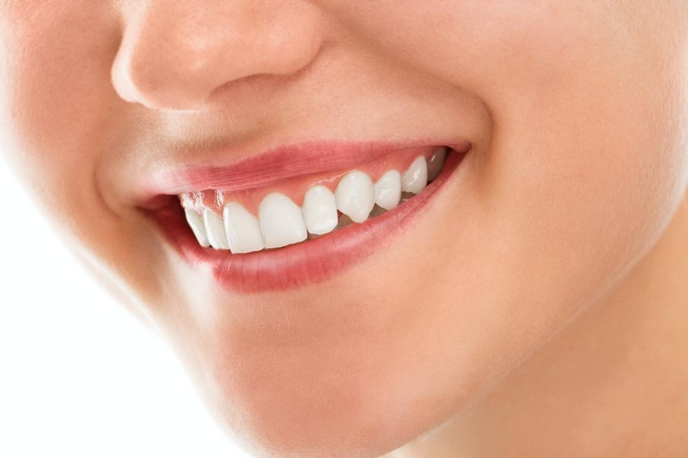 5 mýtů o bělení zubů
