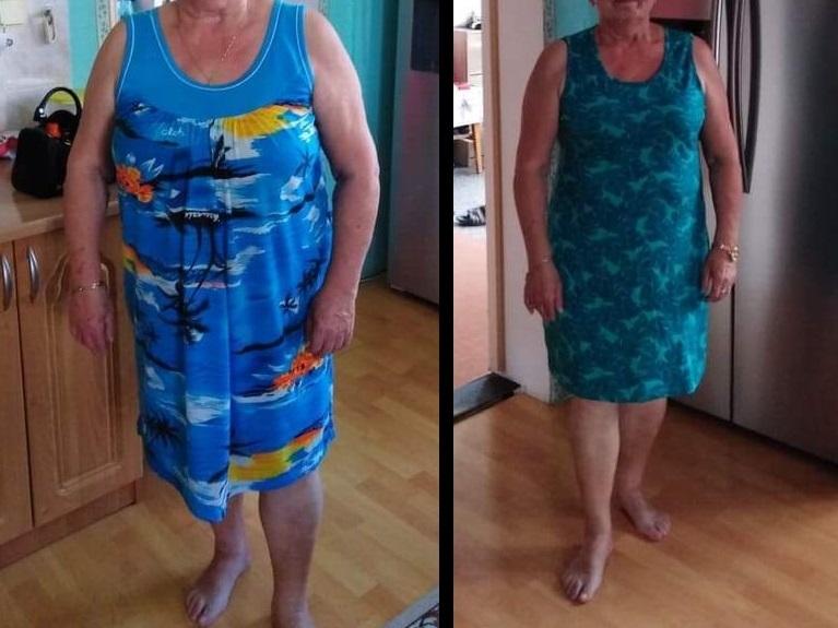 Marie, 72 let / proměna za 9 týdnů