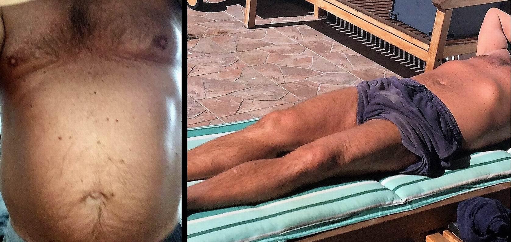 Petr před a po