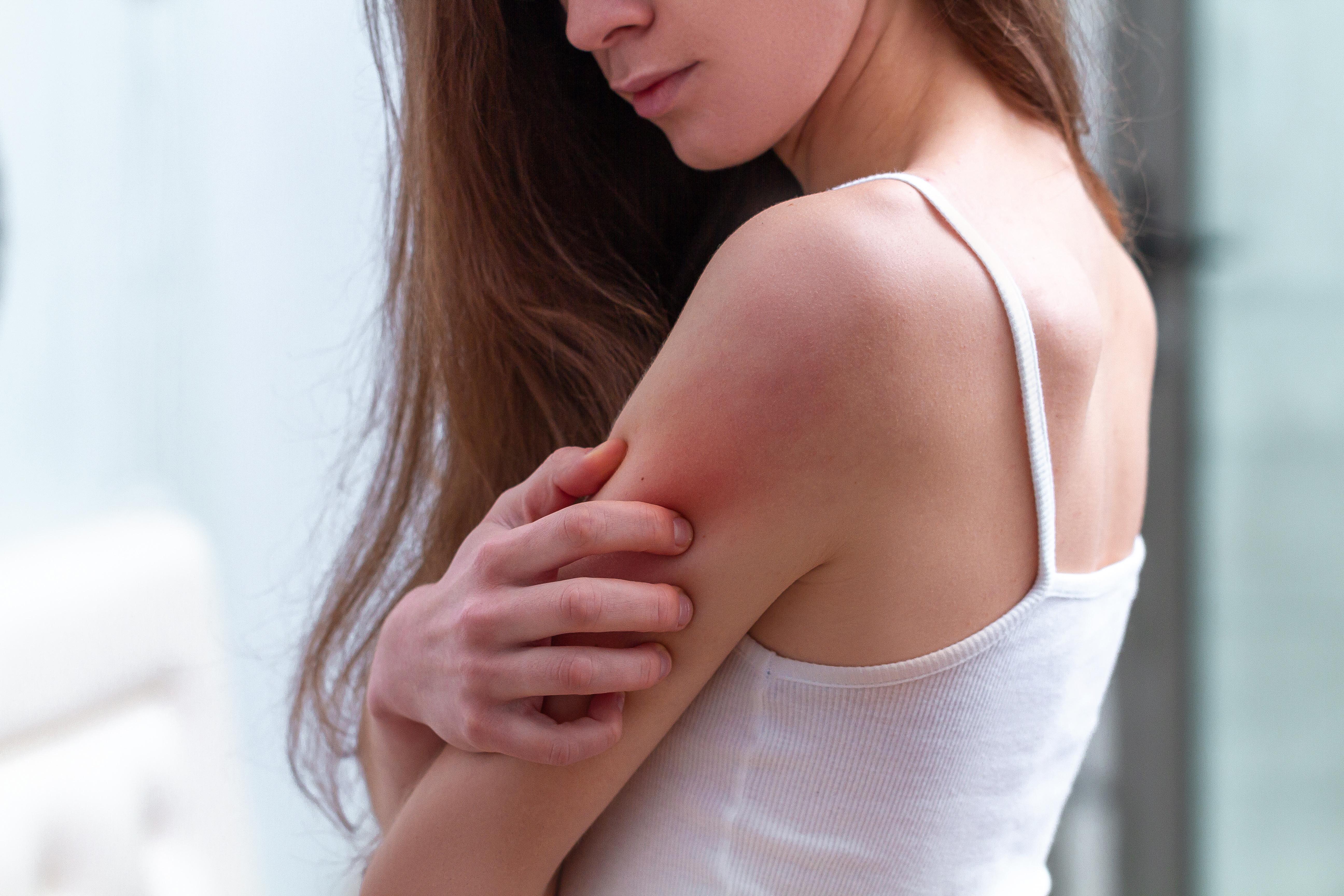 Přírodní péče o atopickou pokožku