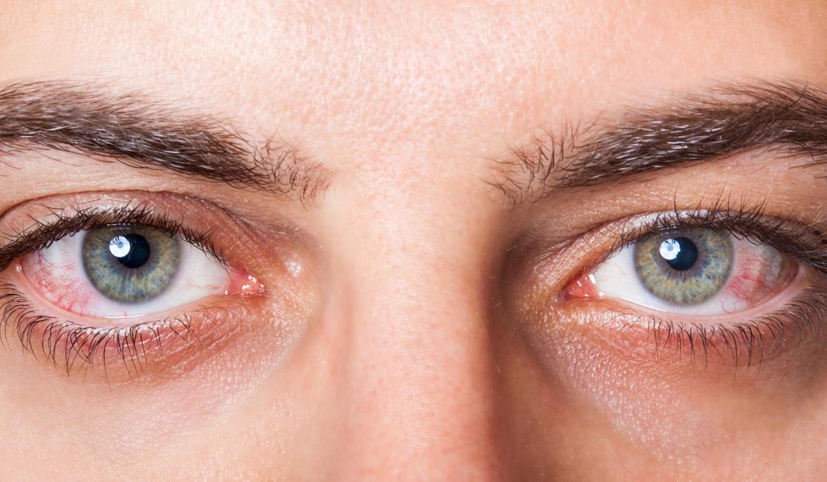 ojos_rojos1