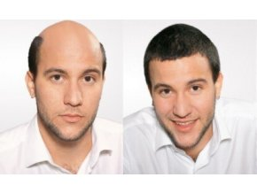 integrace vlasu