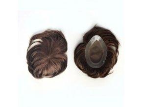 nahrada vlasu tupe integrace