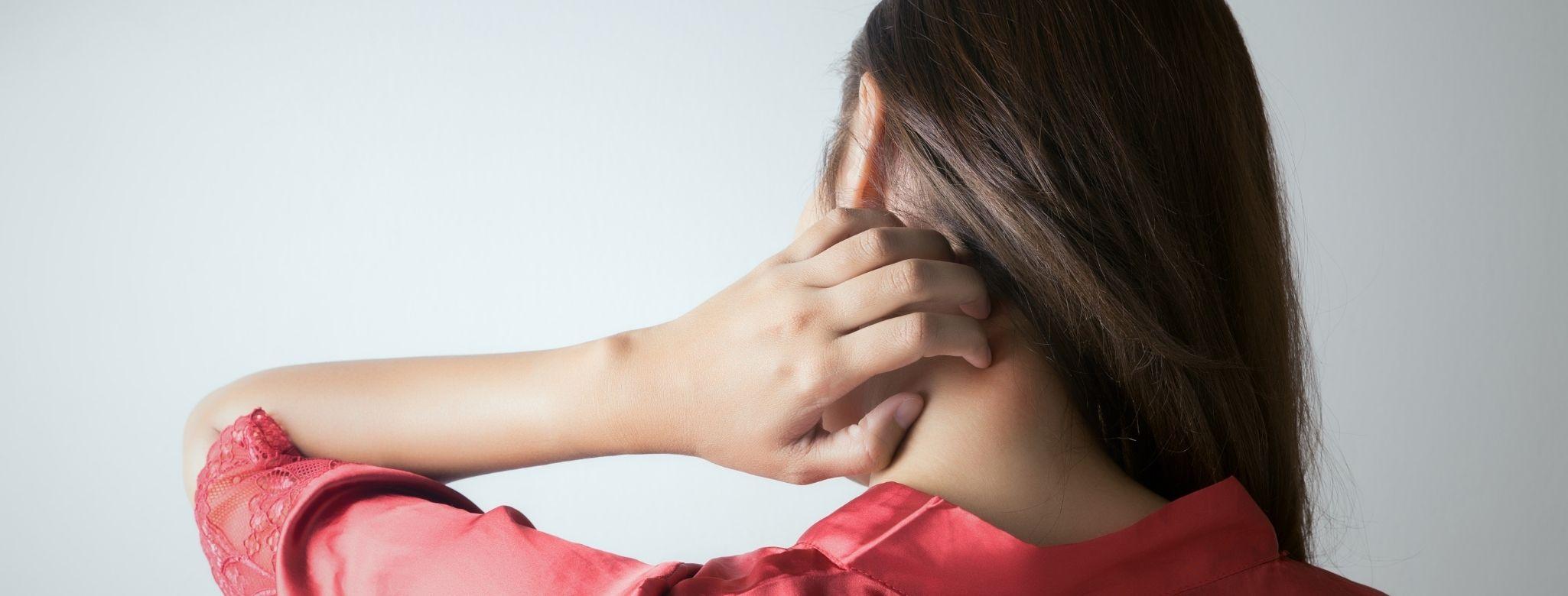 Lupénka ve vlasech: Jak na vlasovou psoriázu?