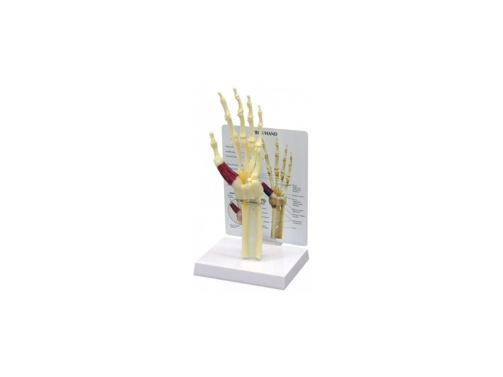 Model ruky a zápěstí se syndromem karpálních tunelů