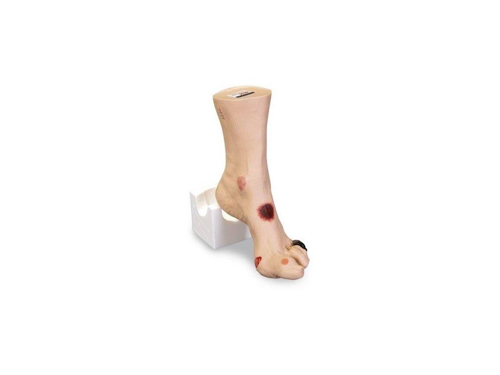 """Zranění chodidla """"Wilma"""""""