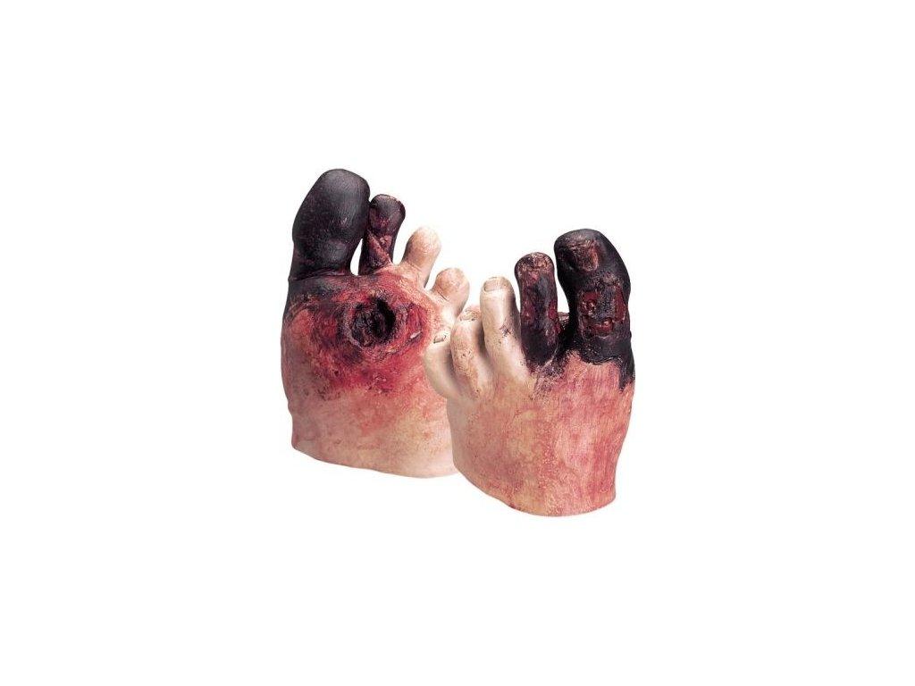 Sada pro ukázku nezdravé péče o chodidlo