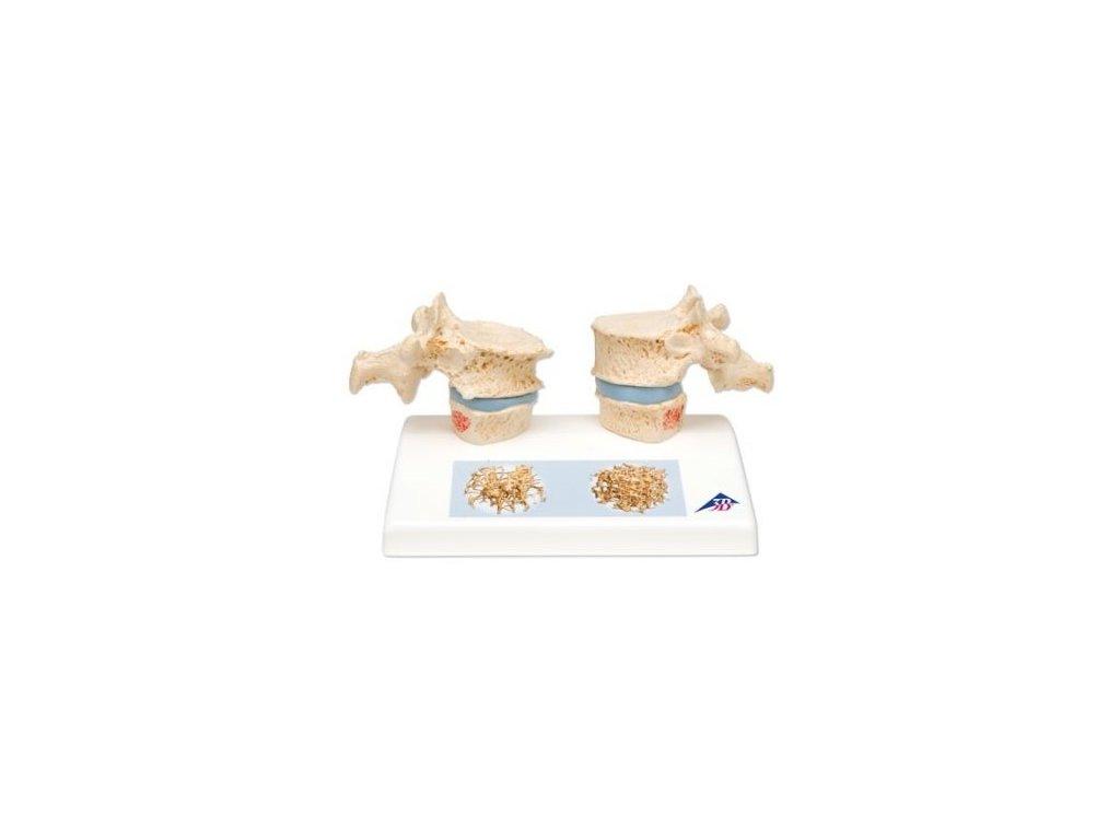 Model osteoporózy