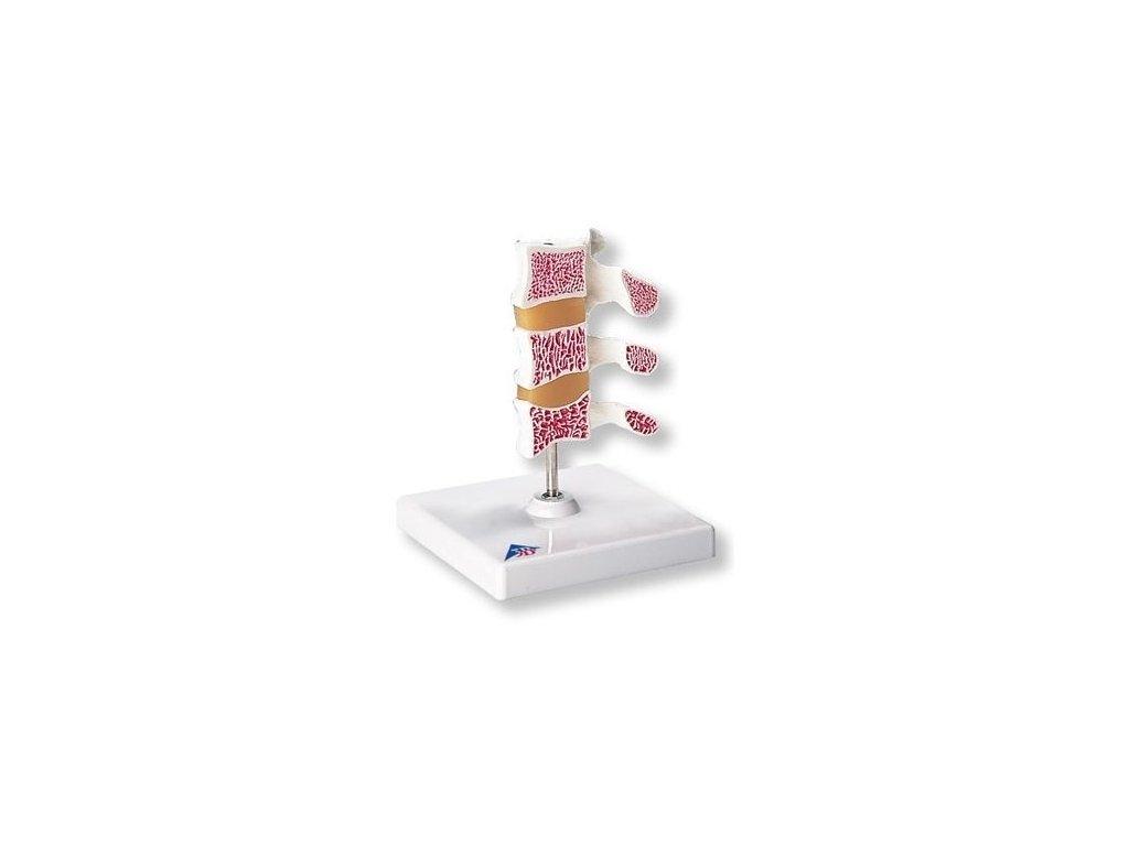 Luxusní model osteoporózy (3 obratle