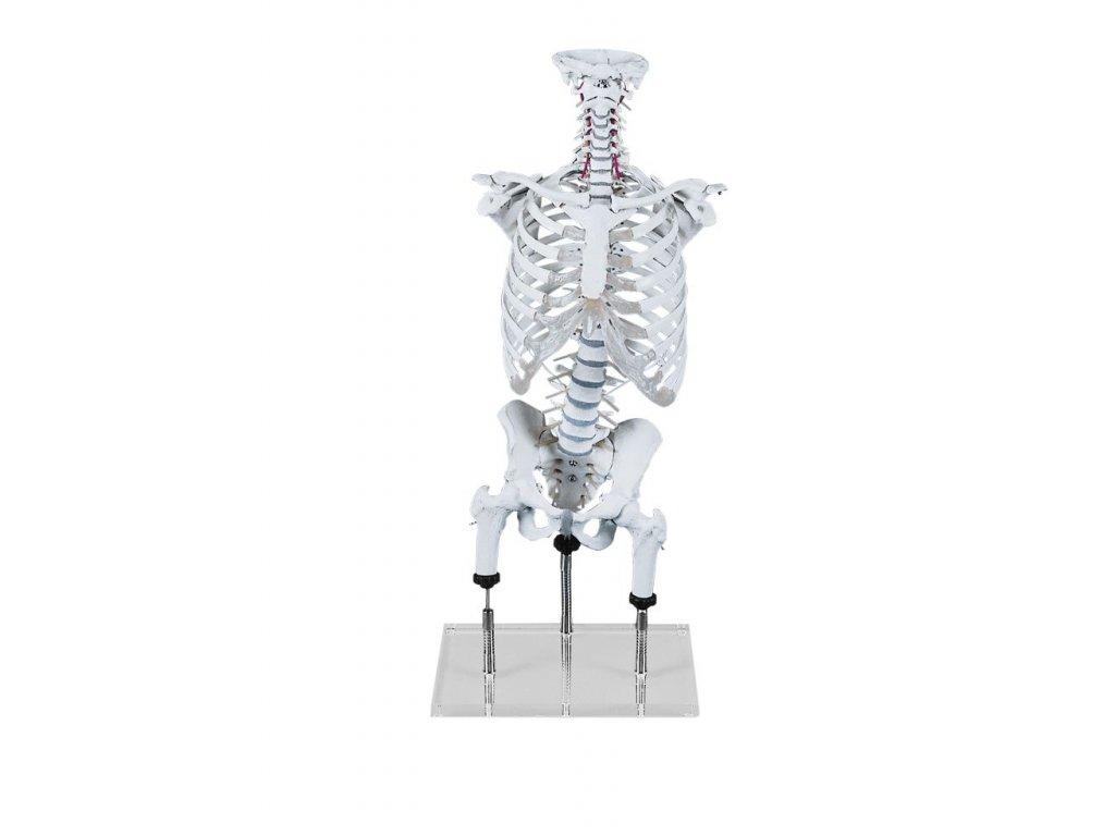 Páteř pro demonstraci nenormální polohy s pávní, steh. kostí, hrudníkem