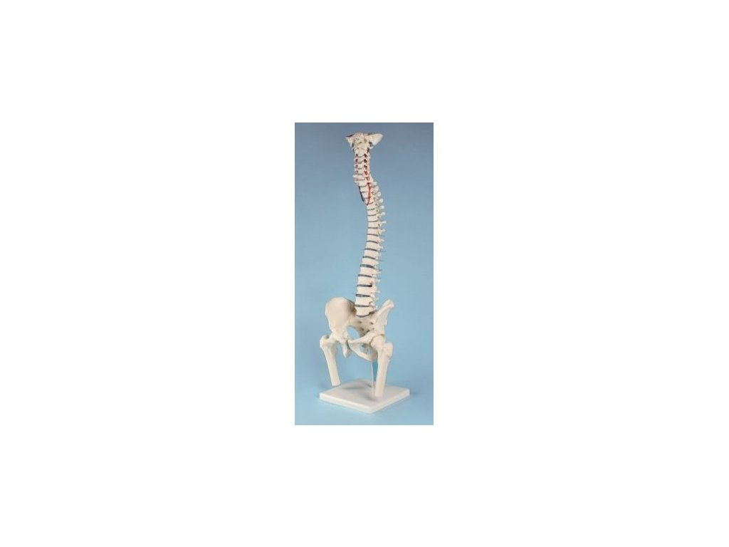 Standardní páteř s pánví, částmi stehenních kostí a vyhřeznutím obratle