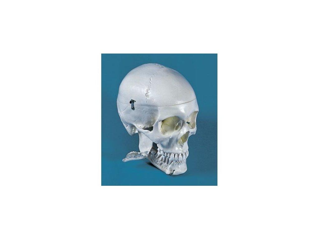 Dentální lebka, 4 části