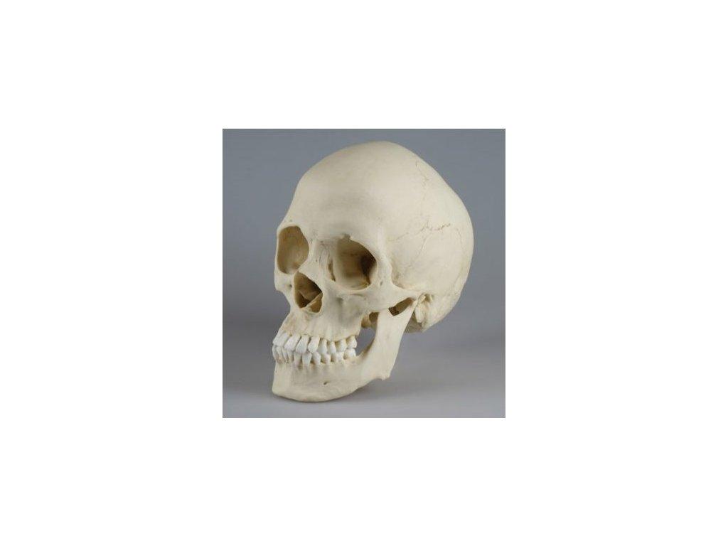 Skafocefalická lebka
