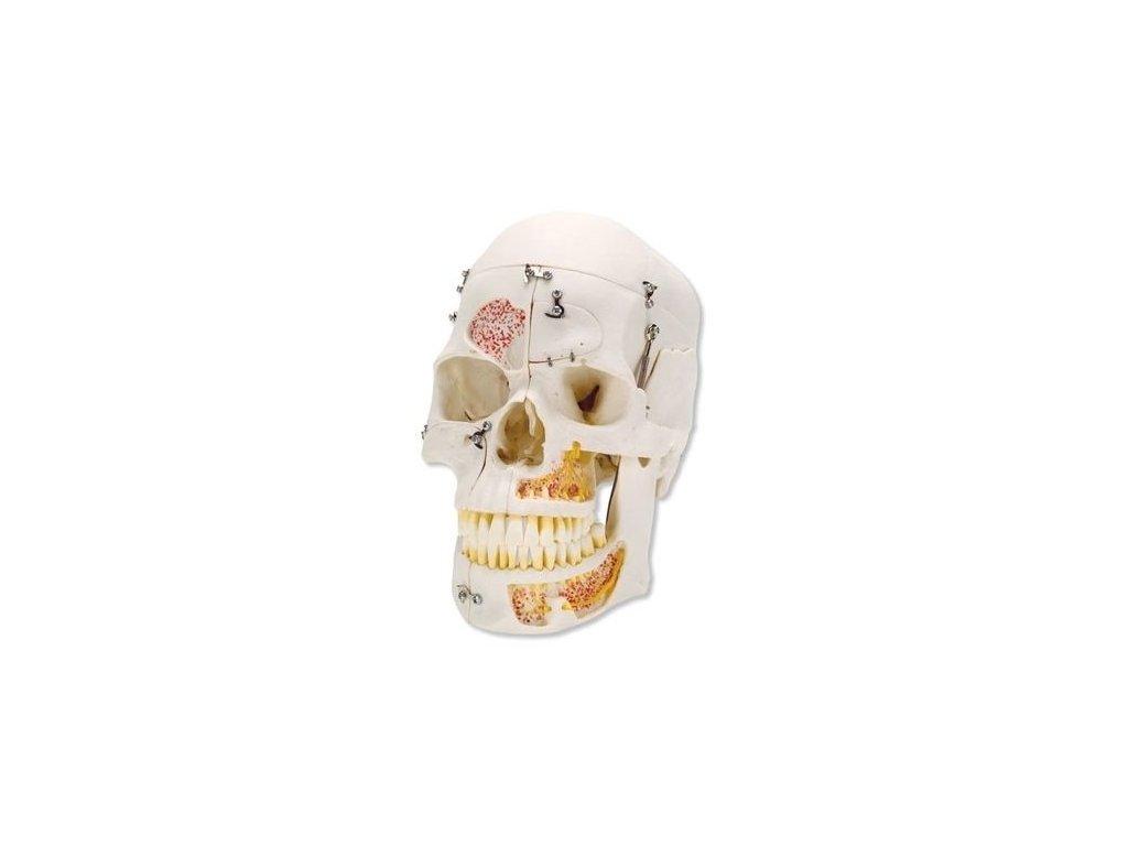 Luxusní model lidské lebky pro ukázku uspořádání zubů, 10 částí