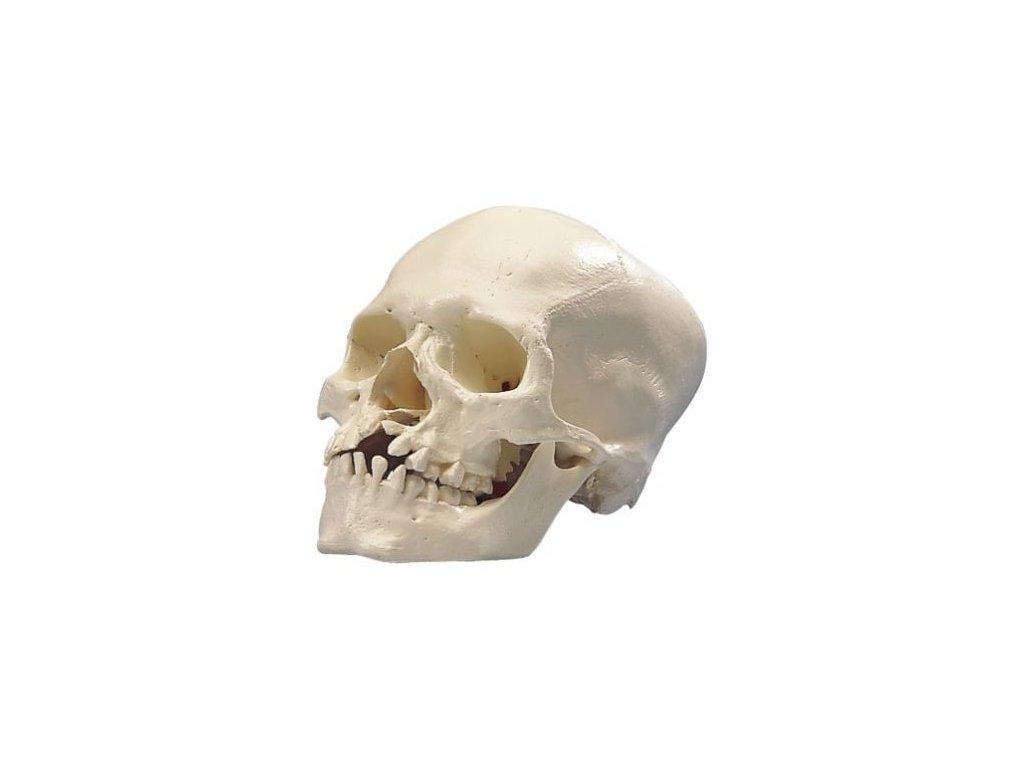 Mikrocefalická lebka