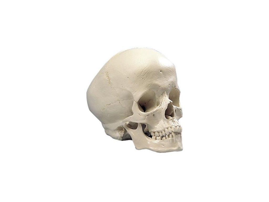 Hydrocefalická lebka