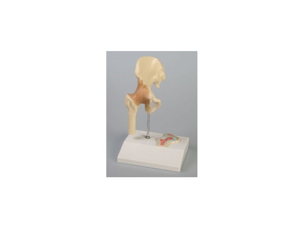 Miniaturní klouby s příčným řezem