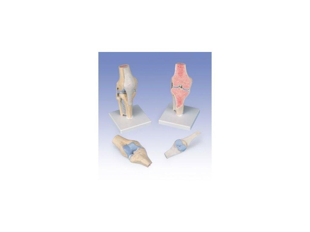 Model kolenního kloubu v řezu