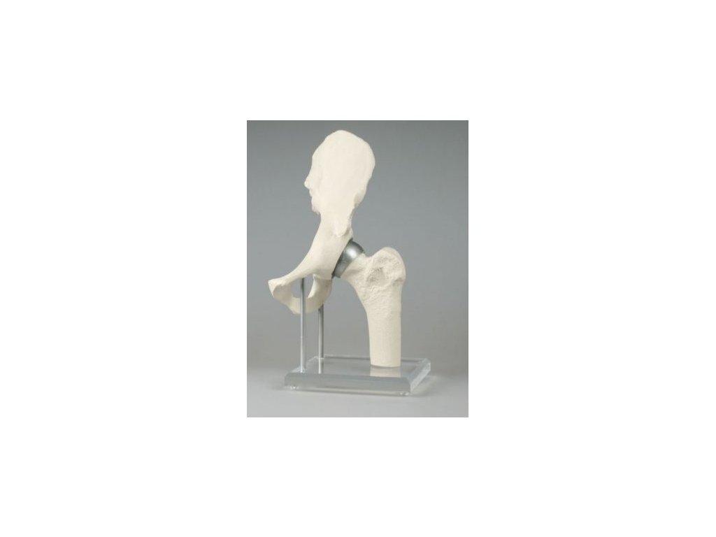 Kyčelní kloub s implantátem