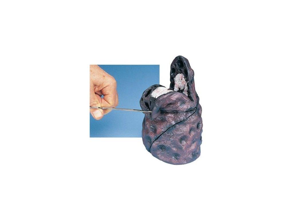 Model rakoviny plic
