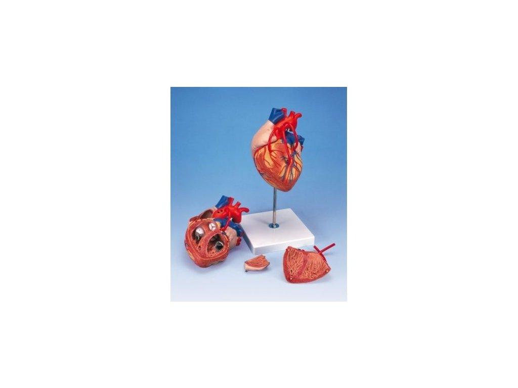Model srdce s bypassem