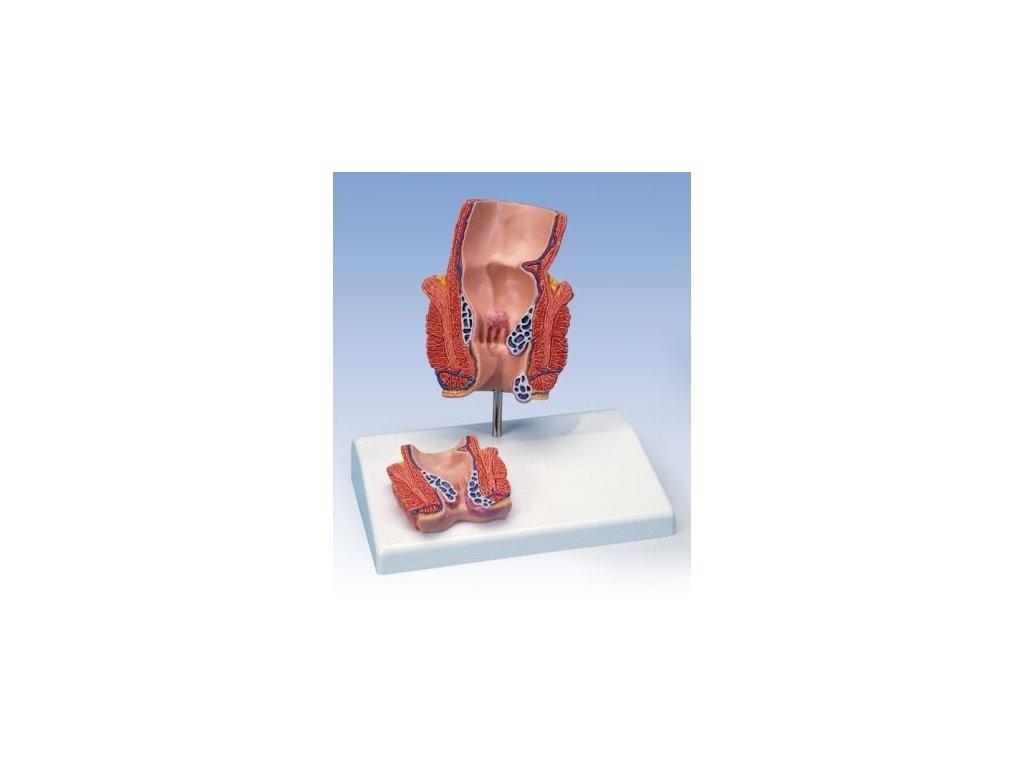 Model hemoroidu