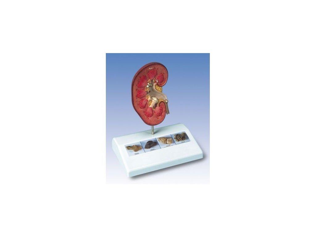 Model ledvinového kamene