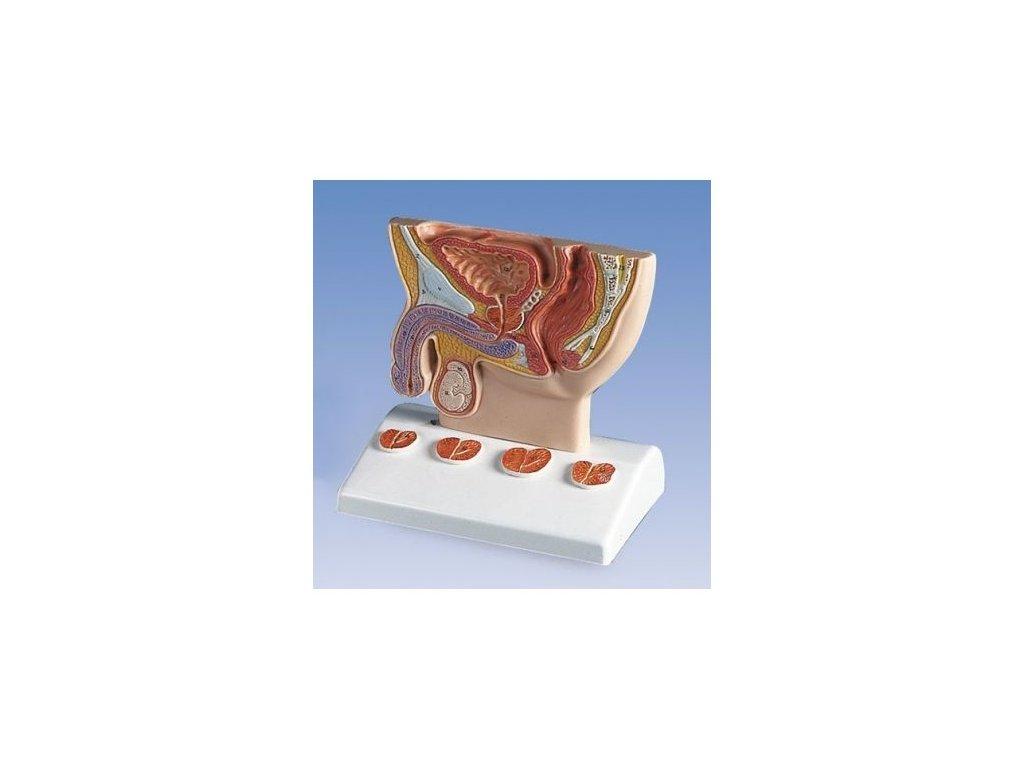 Model prostaty v poloviční velikosti