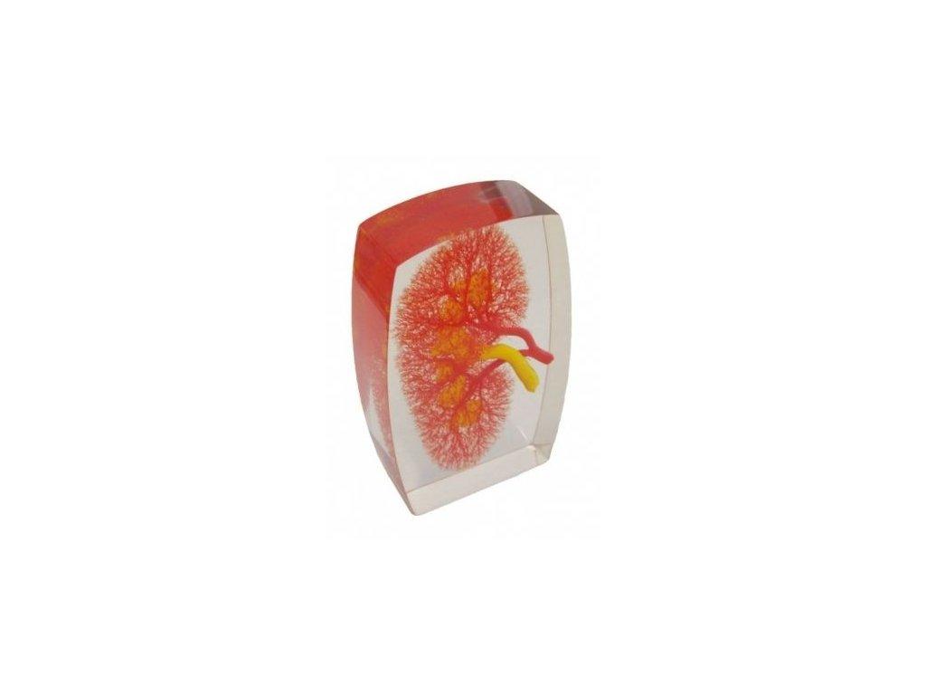 Model ledvinových cév
