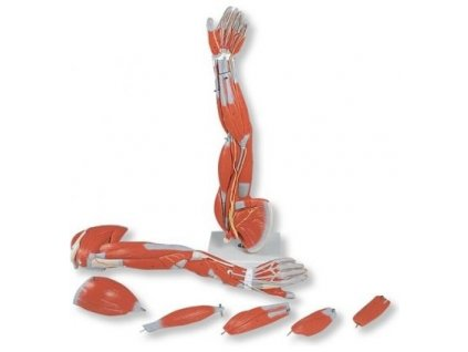 Rozložitelný model horní končetiny se svaly, 6 částí
