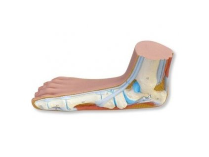 Plochá noha (Pes Planus)