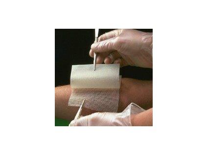 Bactigras antisept.krytí s mastí 15x1m 66007505 (Prom)